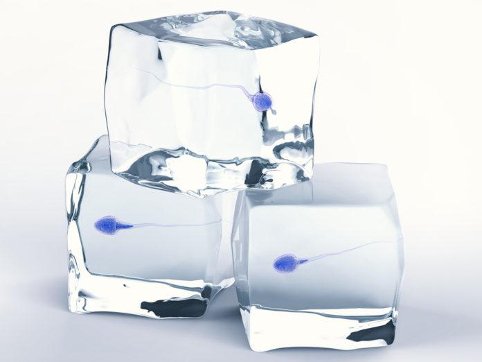Representación de la congelación del semen